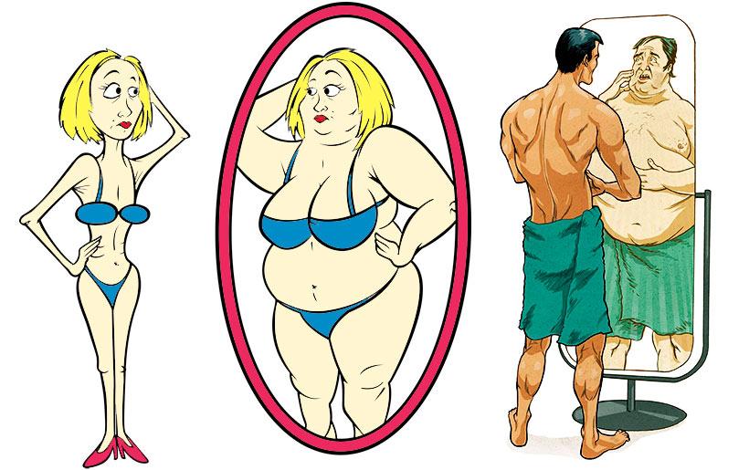 Расстройства пищевого поведения – нервная анорексия и булимия